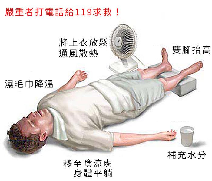 中暑急救方式